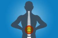 Illustration showing back pain