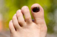 black toenail from running