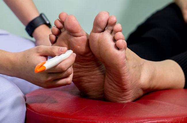 neuropathy check-up on feet
