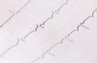 Can You Avoid Irregular Rhythm After Heart Surgery?