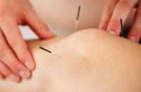 acupuncture on knee