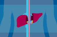 Liver transplant donor