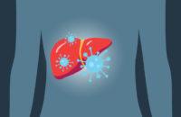 Liver with hepatitis C illustration